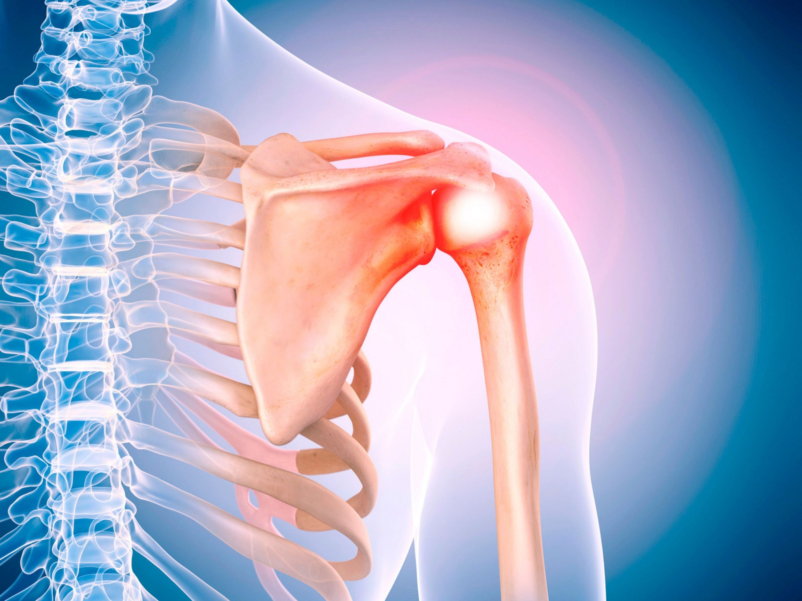 What causes a labral tear?