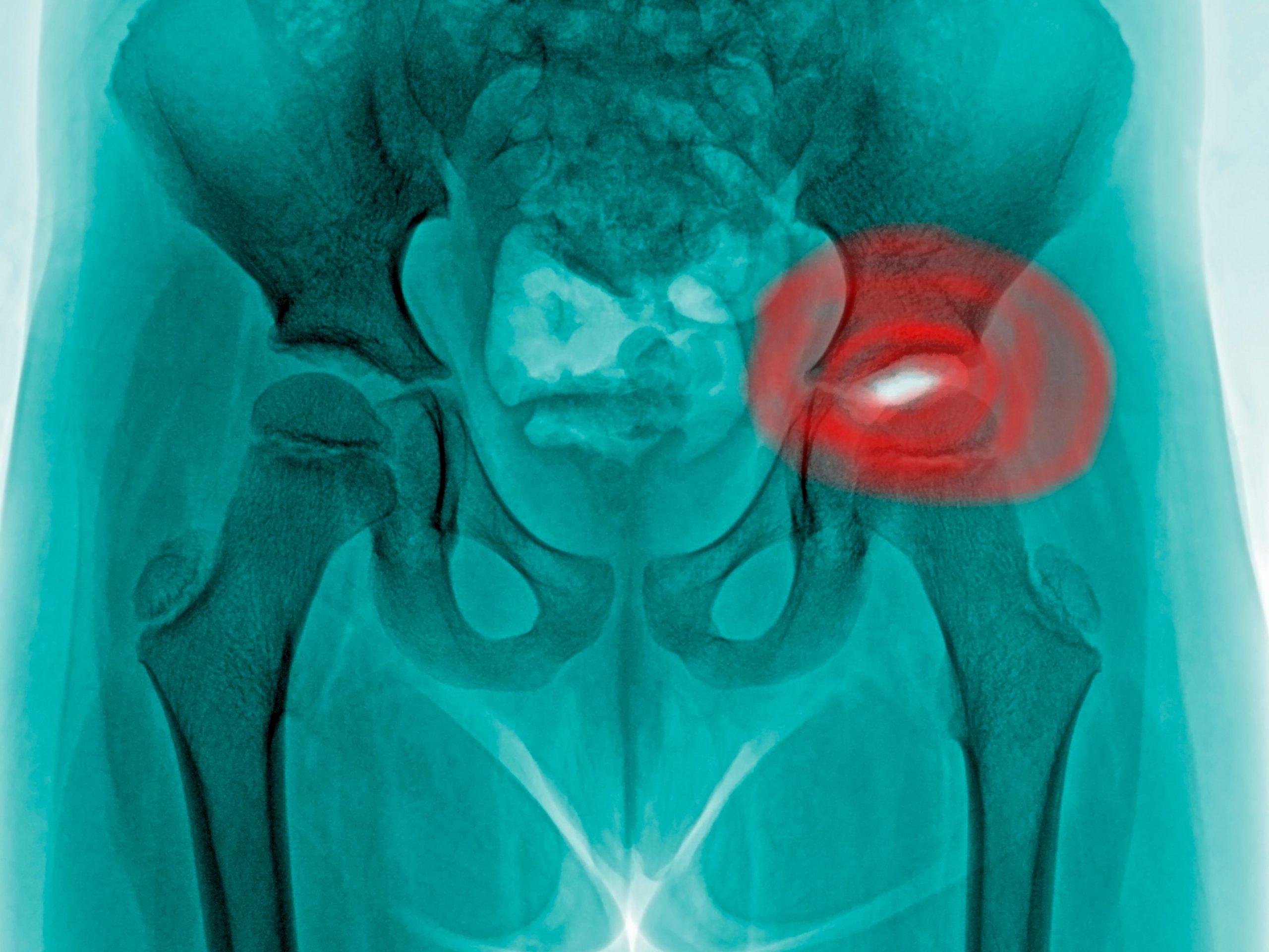 Hip and groin pain?You may have Femoroacetabular impingement (FAI)