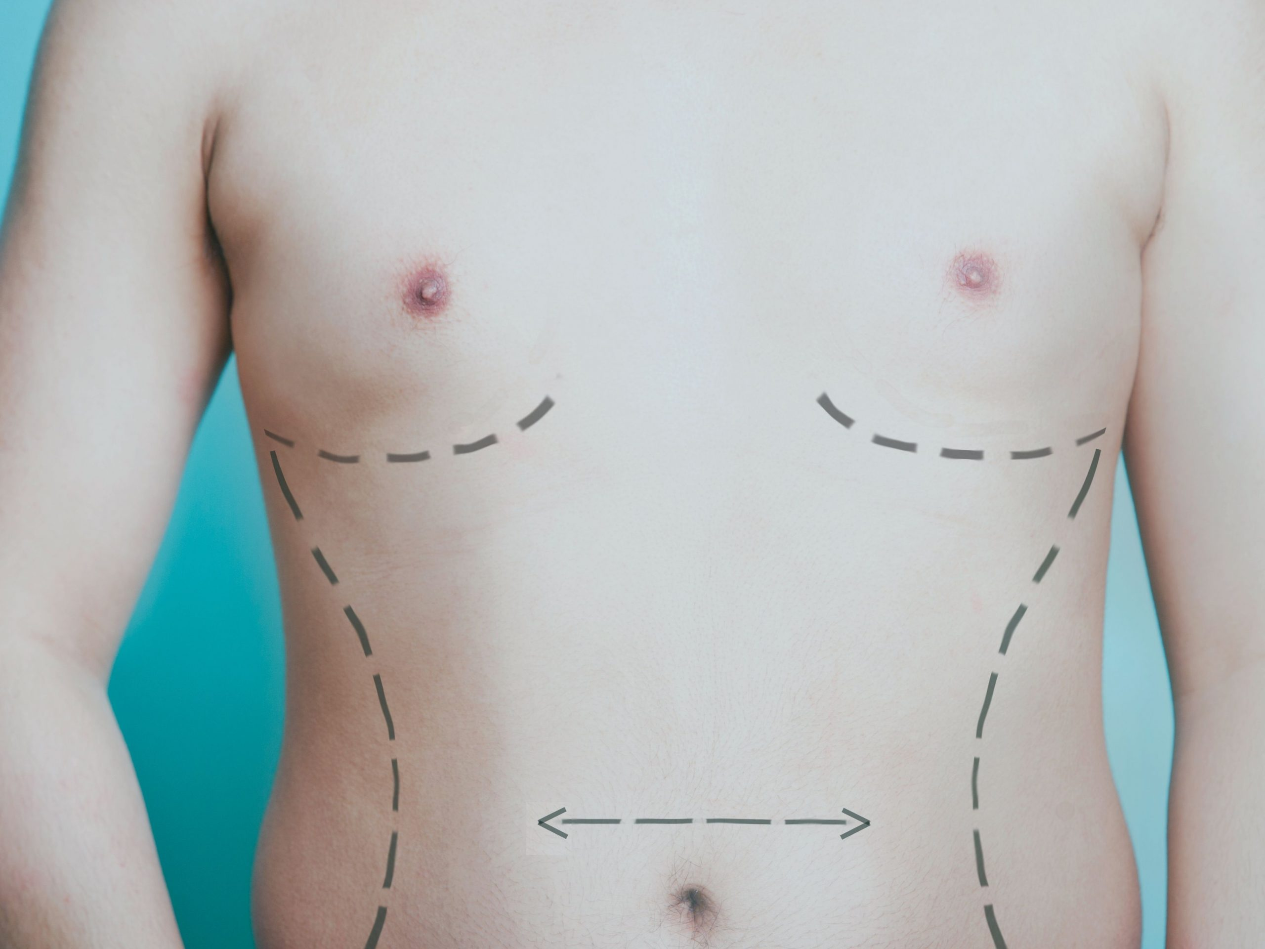 Having aesthetic surgery? How to speed up your post-op